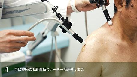 1分で分かる肩関節ブロック - ほったクリニック