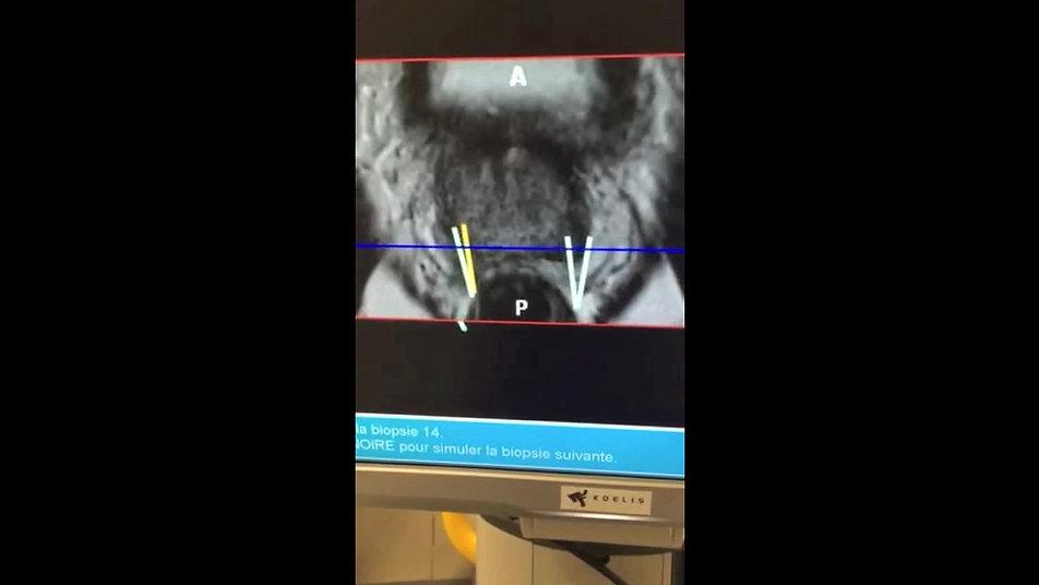 Ponction biopsies de prostate ciblées en fusion IRM/écho