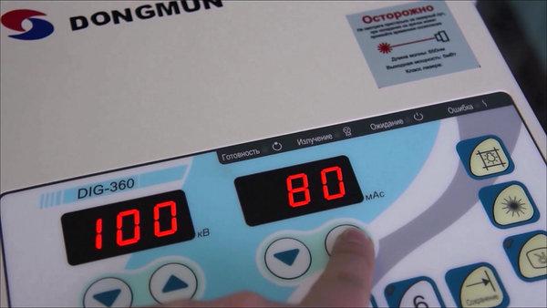 Рентген аппарат DIG360