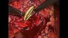 Laparoscopic Pyelolithotomy 1 of 2