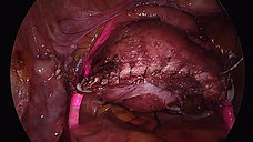 Laparoscopic Hysterectomy and Sacrocolpopexy with the Iris System