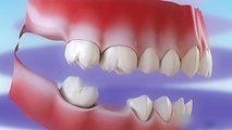 4. Diş Eksiklikleri ve Sonuçları