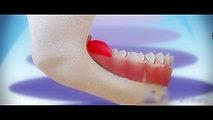 1. Gömülü Dişler Neden ve Nasıl Çekilmelidir?