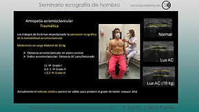 13 Patologia de la articulacion acromioclavicular