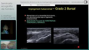 14 FIN Video 3T Impingement externos de hombro