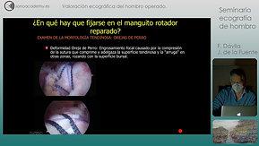 17 FIN Video 6T Valoración ecográfica del hombro operado-