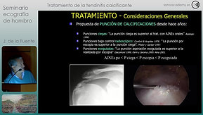 08 FIN Video 7 Tratamiento de la tendinitis calcificante