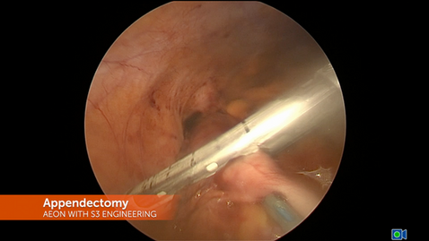 AEON Appendectomy