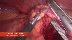 AEON Total Colectomy