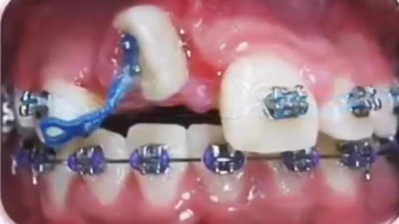 Orthodontics Miracles