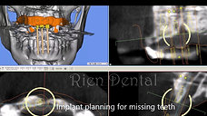 Implant supported crowns and cantilever bridge