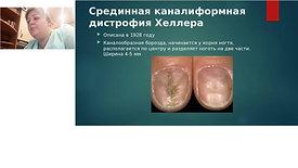 Ониходистрофия. Травмы ногтевой пластины
