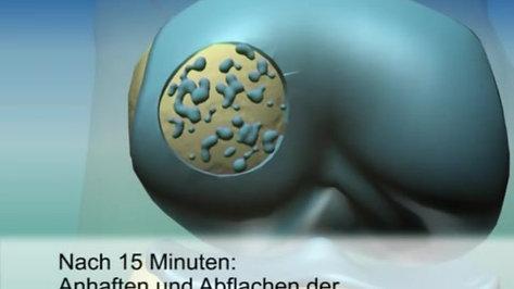 Video-Animation zur Knorpelzelltransplantation