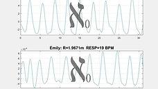 two toddlers respiration; single radar