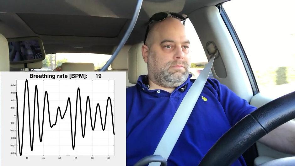 Automotive in-cabin remote vital signs monitor