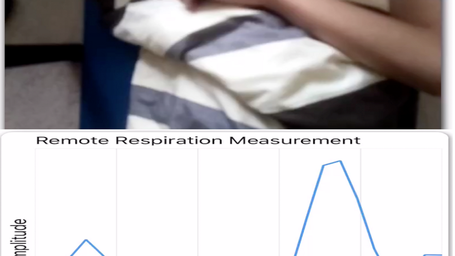 Camera-based remote vital signs monitor