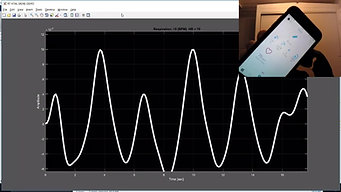 Remote heart-rate monitor done with a low-cost radar
