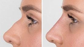 Nose Filler