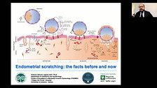 01 Dr.Antonio Simone Laganà Endometrial scratching