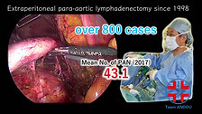 06 Dr. Shiori Yanai  Selection of dissection line for complete laparoscopic