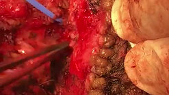 Fístula rectoescrotal