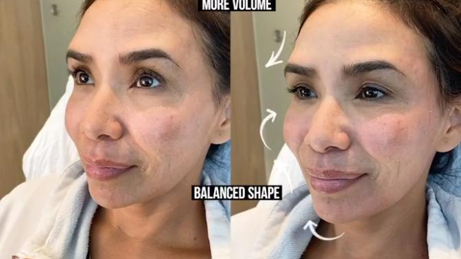 Fillers | Female Facial Sculpting
