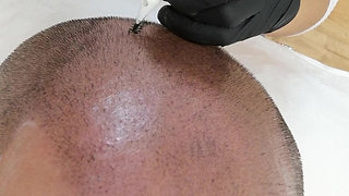 SCALP MICROPIGMENTATION bei MANUK
