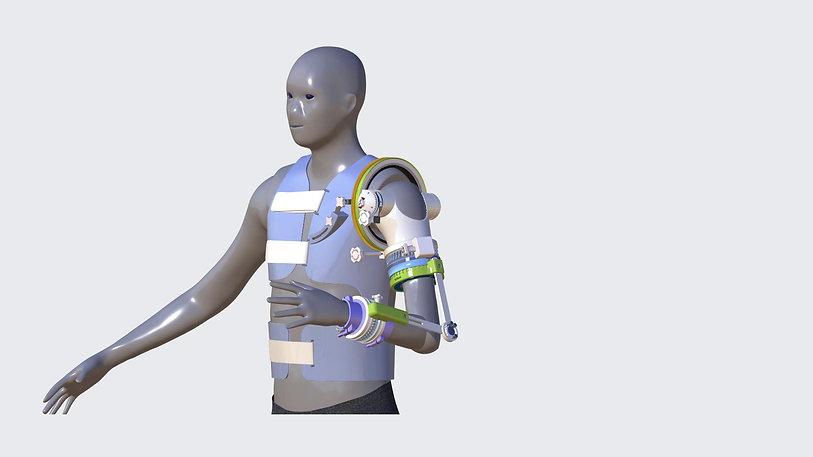 The ROM4 Splint - Running Motion