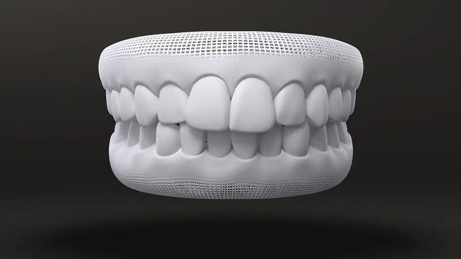 Treatable Invisalign Cases