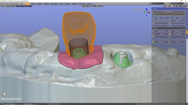 Blenderfordental