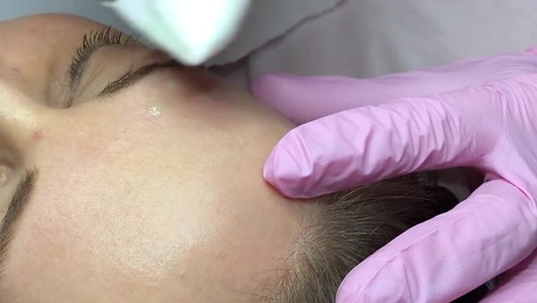 Pre Procedure of Mole Removals