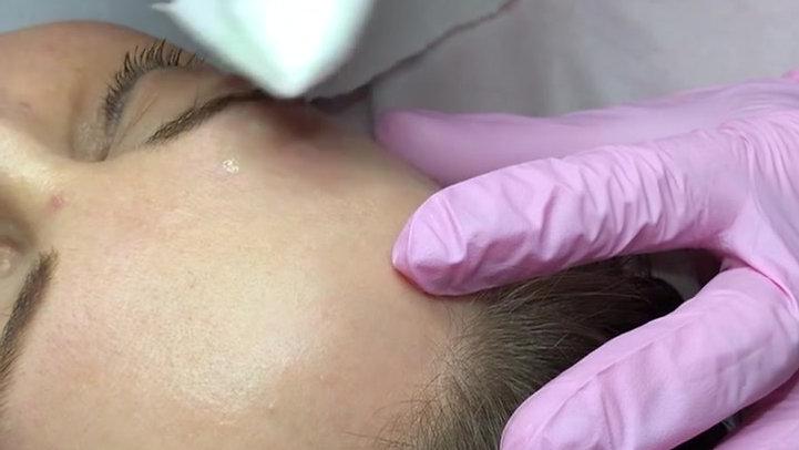Pre Procedure of Mole Removals
