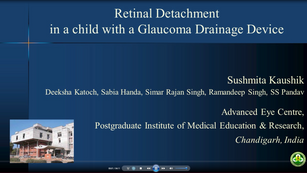 3 - Sushmita Kaushik - Retinal detachment in a child with a glaucoma drainage device: Use the implant!