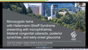 27 - Kellyn Bellsmith – Case report of monozygotic twins with Hallerman-Streiff syndrome presenting with microphthalmia, bilateral congenital cataracts, posterior synechiae, and early-onset glaucoma