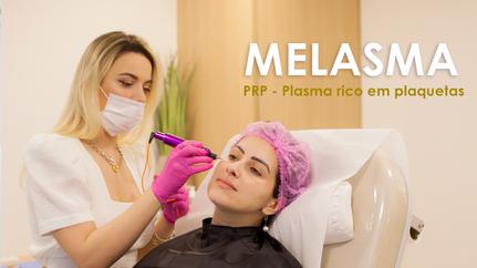Melasma tratando com PRP - Plasma rico em plaquetas