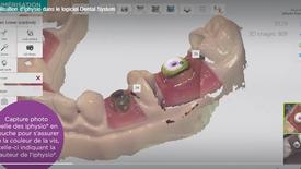 Utilisation d'Iphysio dans le logiciel Dental System