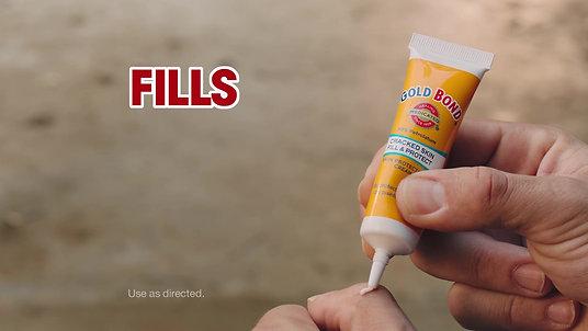 Gold Bond Cracked Skin Cream (National TV - Voice Over)