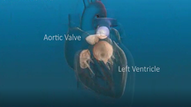 Heart suffers from severe Aortic Valve Regurgitation symptoms