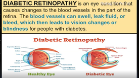 Suffers from chronic diabetes, diabetic retinopathy and high blood pressure