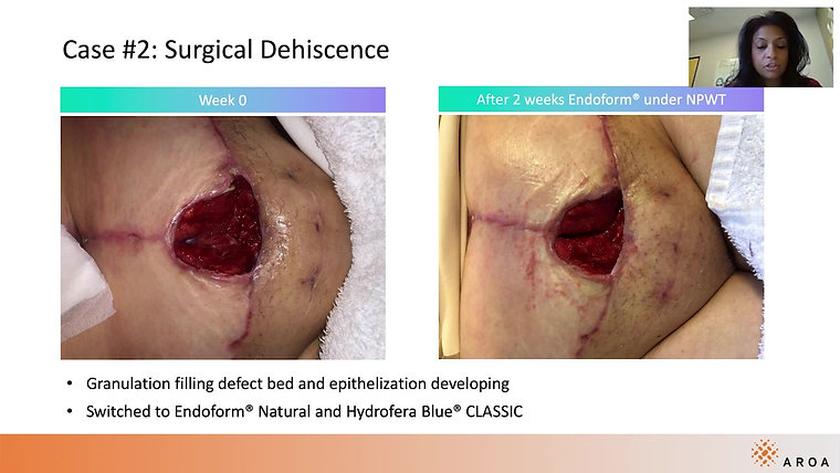 Case Study: Surgical Dehiscence