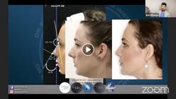 Facial Aesthetics SOS / Episode 3: Mastering The Midface