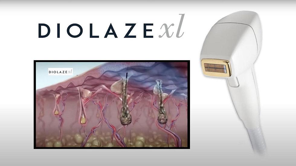 DiolazeXL