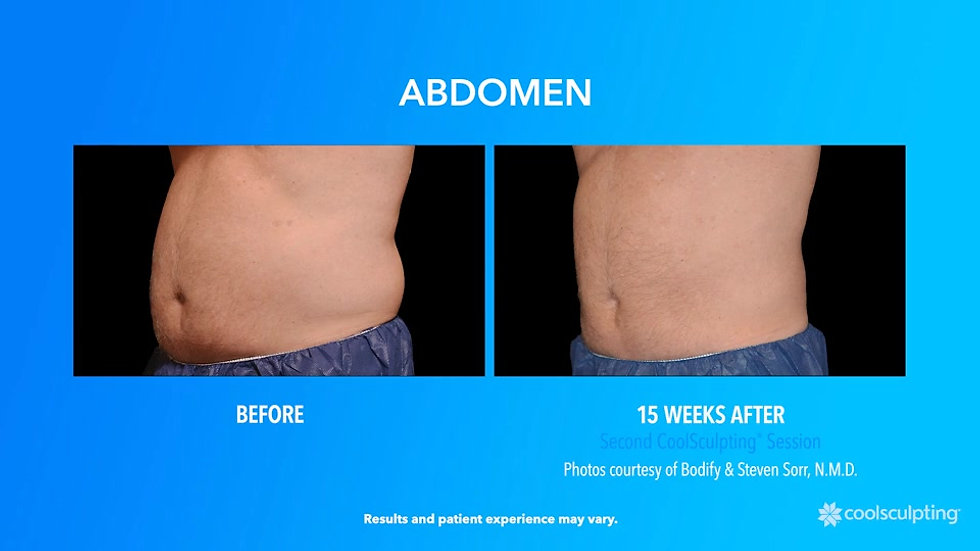 The CoolSculpting Journey