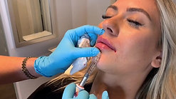 Juvederm Ultra Lip Filler by Heather at Renew Beauty Med Spa