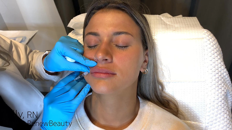 Lip Filler using Juvederm Ultra Plus by Kelly R.N.