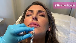 Juvederm Ultra Plus Lip Filler by Heather at Renew Beauty Med Spa