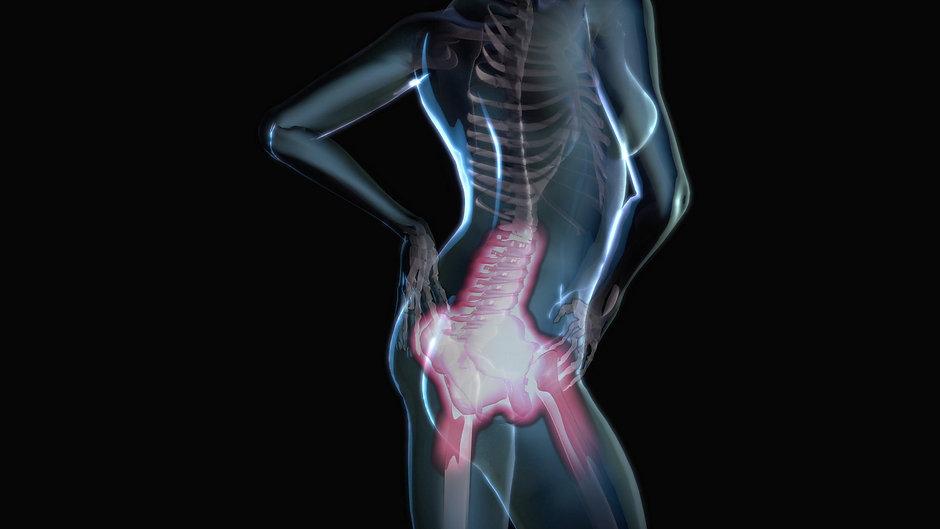 Back Pain 3D animation