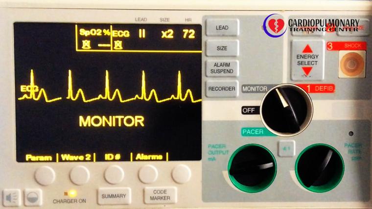 Arritmias Cardíacas en Monitor