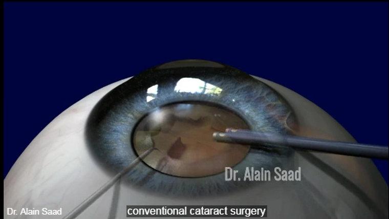 Femto Cataract animation