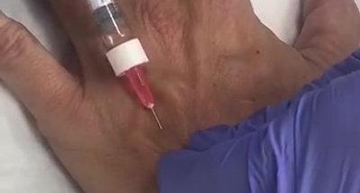 Tratamiento para manos Restylane Lyft
